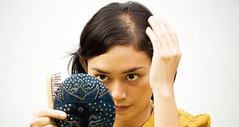 svider i hårbotten tappar hår